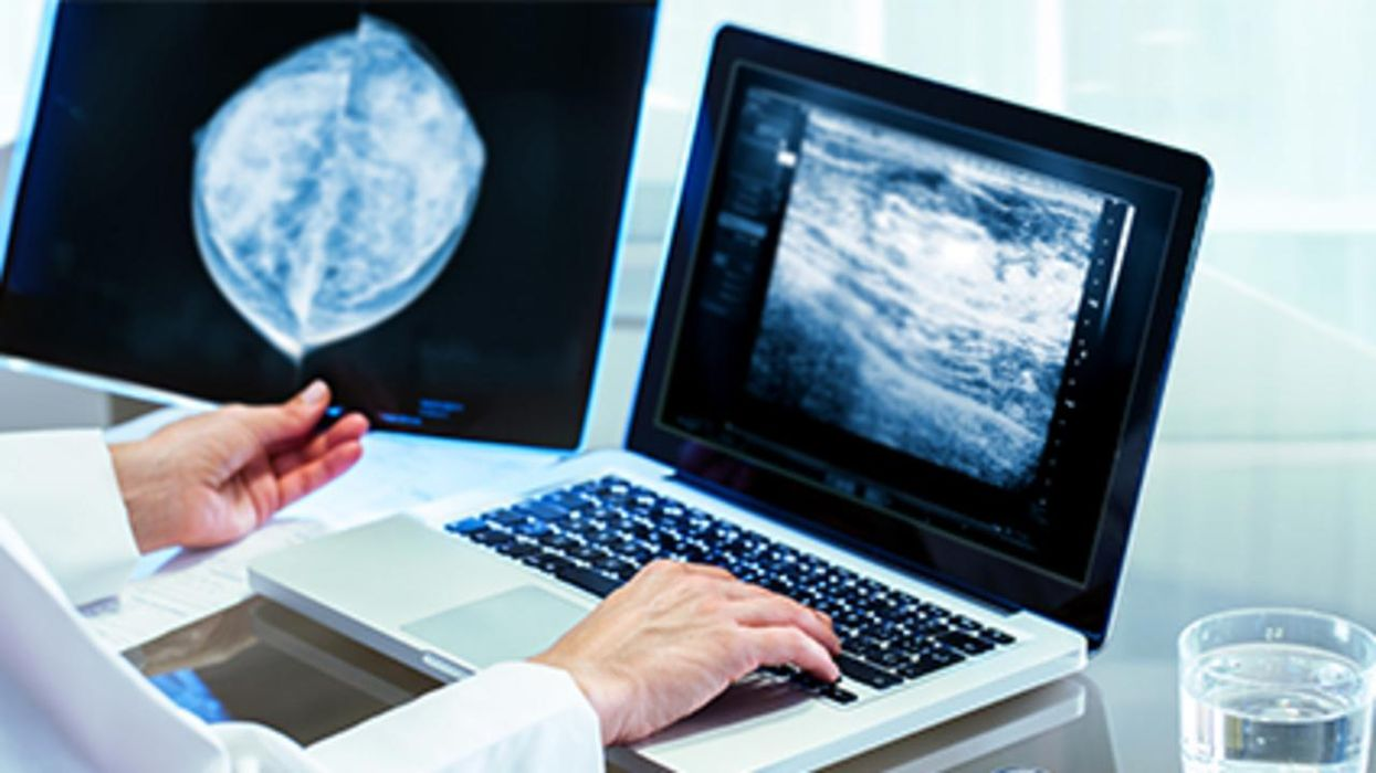 AI Helps Rule Out Cancer in Women with Dense Breasts