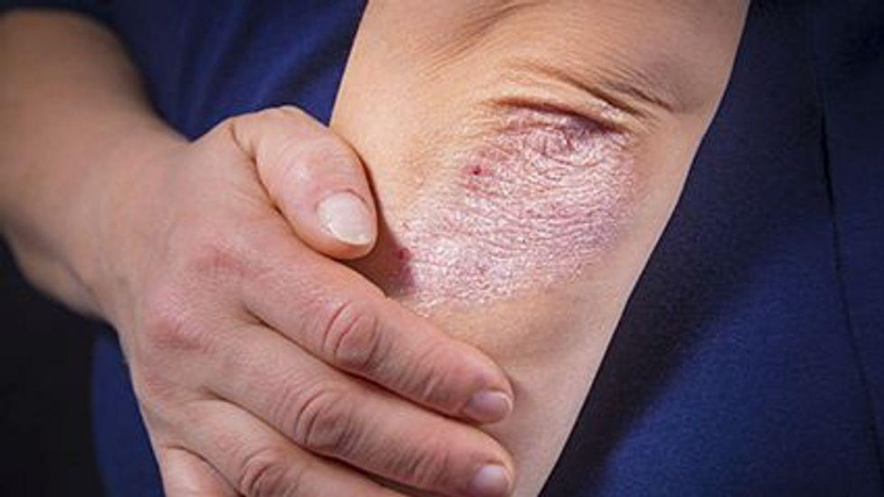 a person showin an elbow with a skin condition called Psoriasis