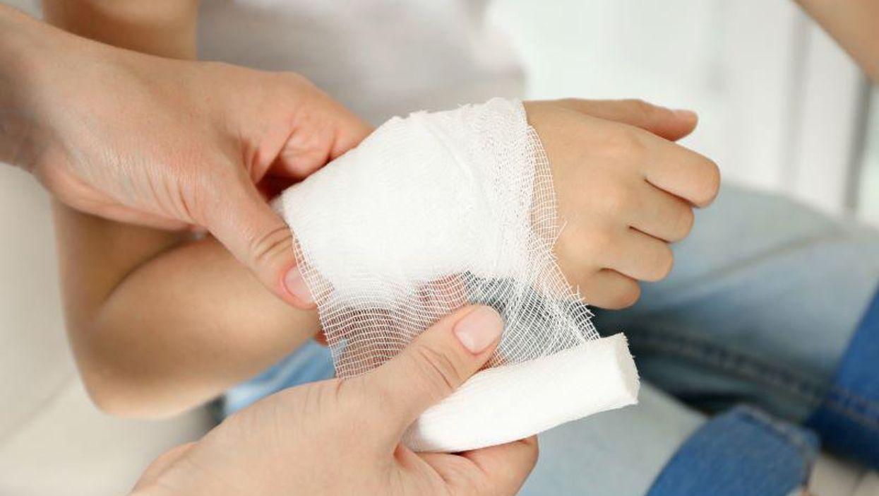 burn bandage child