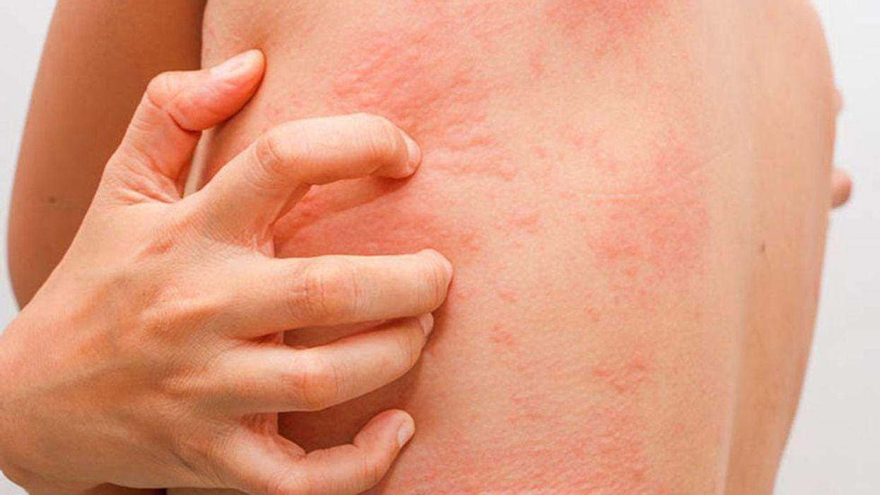 red rash on man's back