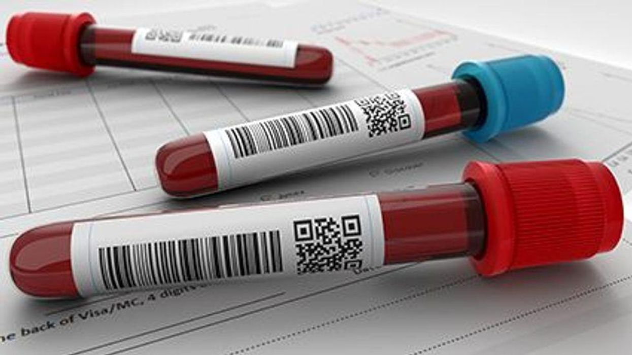 a blood tubes