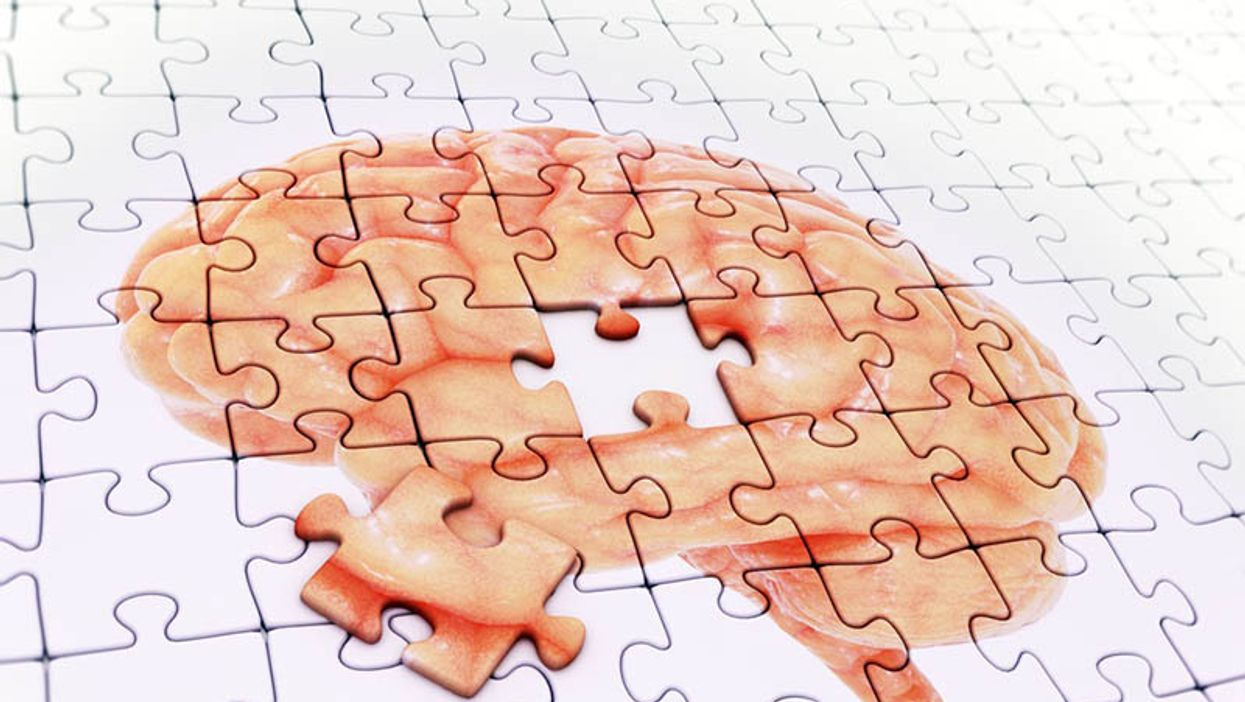 puzzle pieces with the picture of the brain