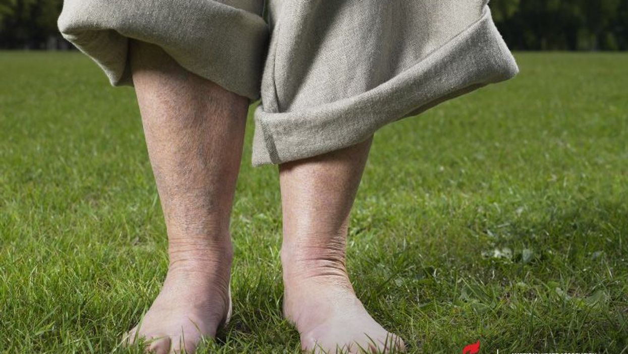 Early Detection of Severe Circulation Problem Can Prevent Amputations