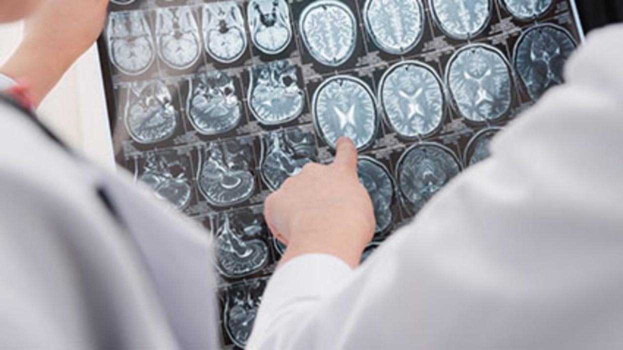 Una mejora en la calidad del aire estimula la salud del cerebro y reduce el riesgo de demencia