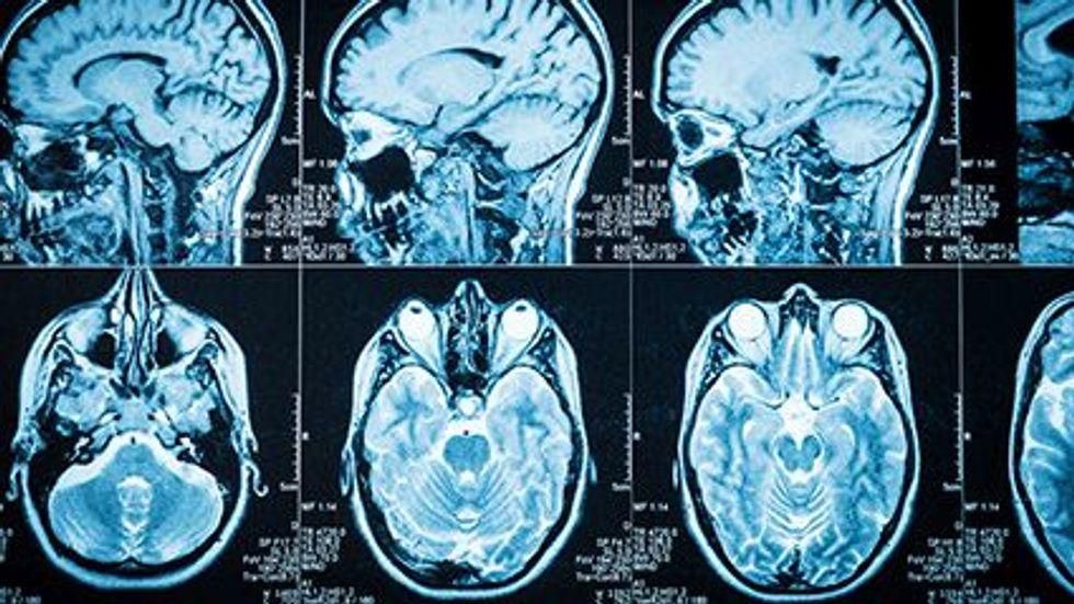 News Picture: Could Cholesterol Help Drive Alzheimer's Disease?