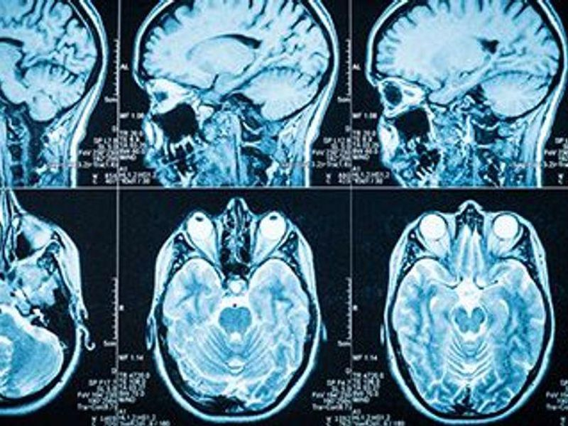 Could Cholesterol Help Drive Alzheimer's Disease?