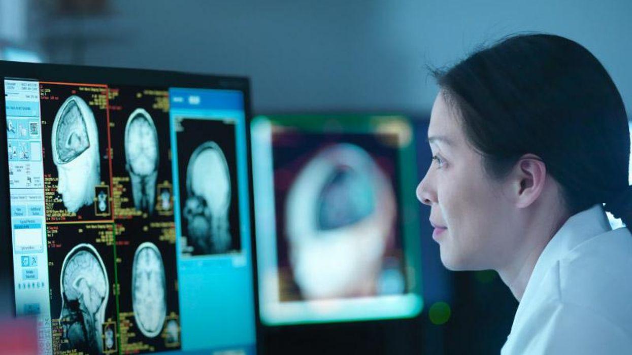 AHA News: ¿Qué están haciendo los investigadores para frenar la demencia?