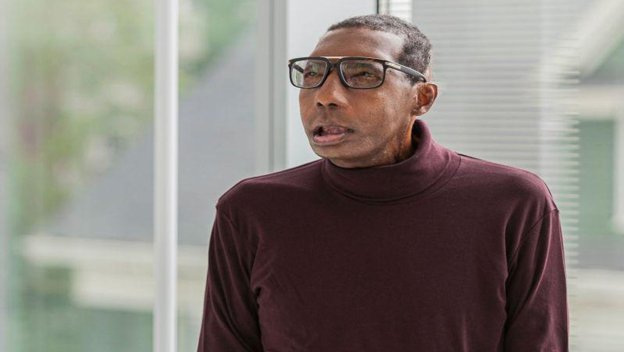 World's First Face Transplant in a Black Patient Brought Special Challenges